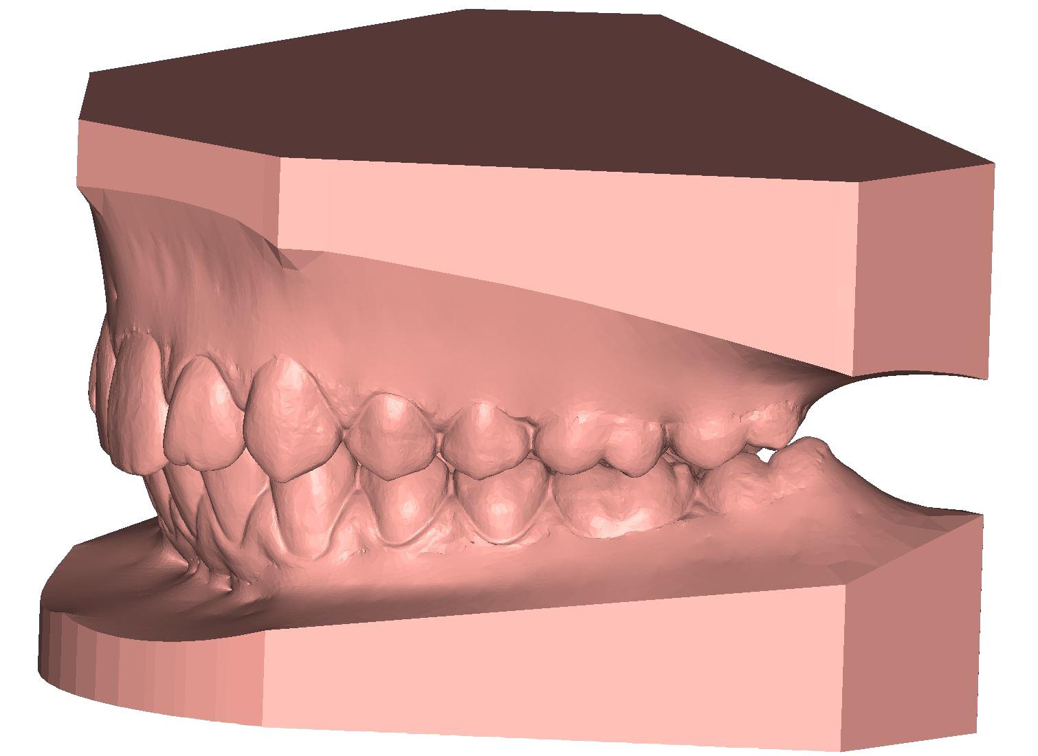 ArchBase study base 3D dental model DeltaFace