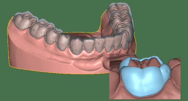 conception d'appareils dentaires Deltaface appliance