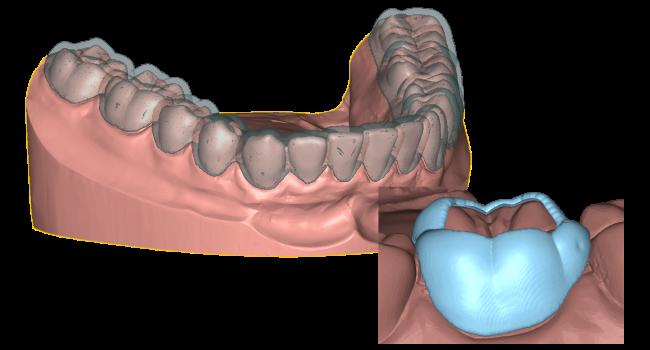 Appliance: dental orthodontic appliances design DeltaFace