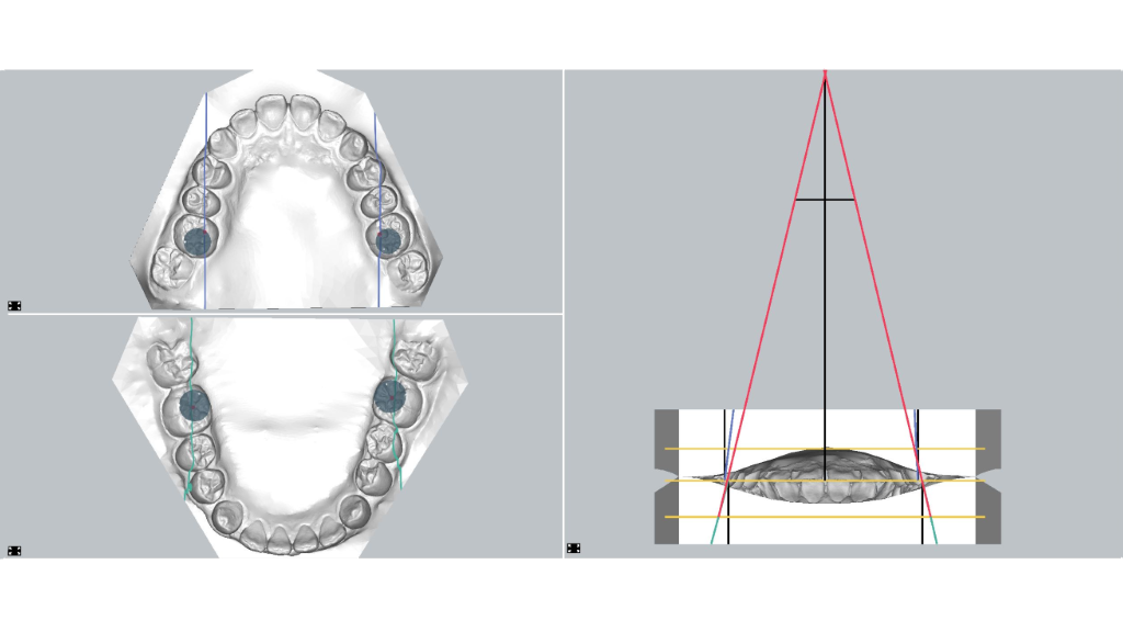 orthodontic axioscopy