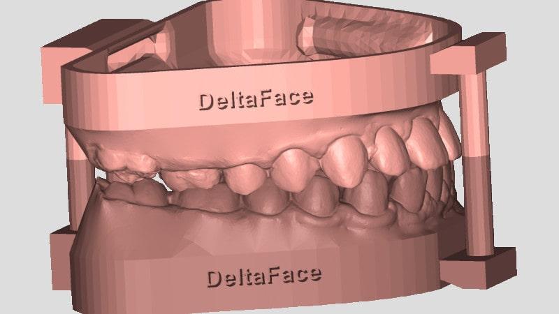 3D model creation deltaface arch base
