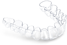 dental appliance clear aligner Deltaface