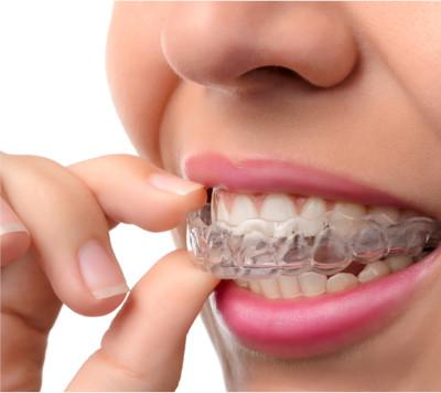 Aligner conception de gouttière dentaire transparente