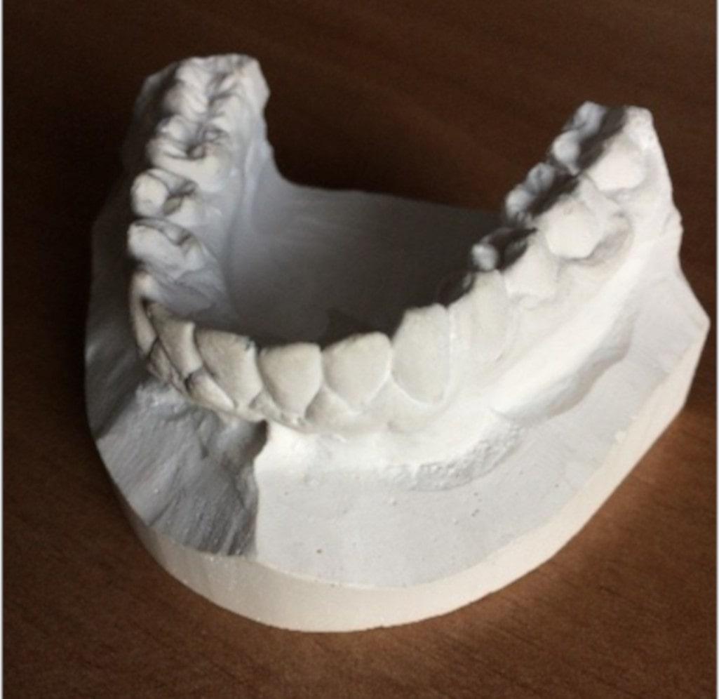 modèle dentaire alginate