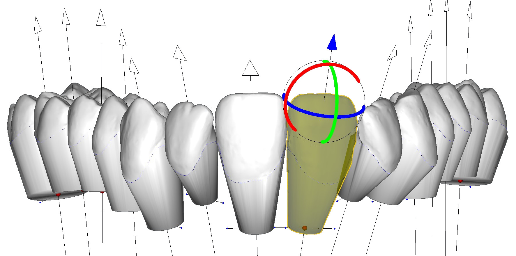 virtual roots and center of resistance of tooth DeltaFace