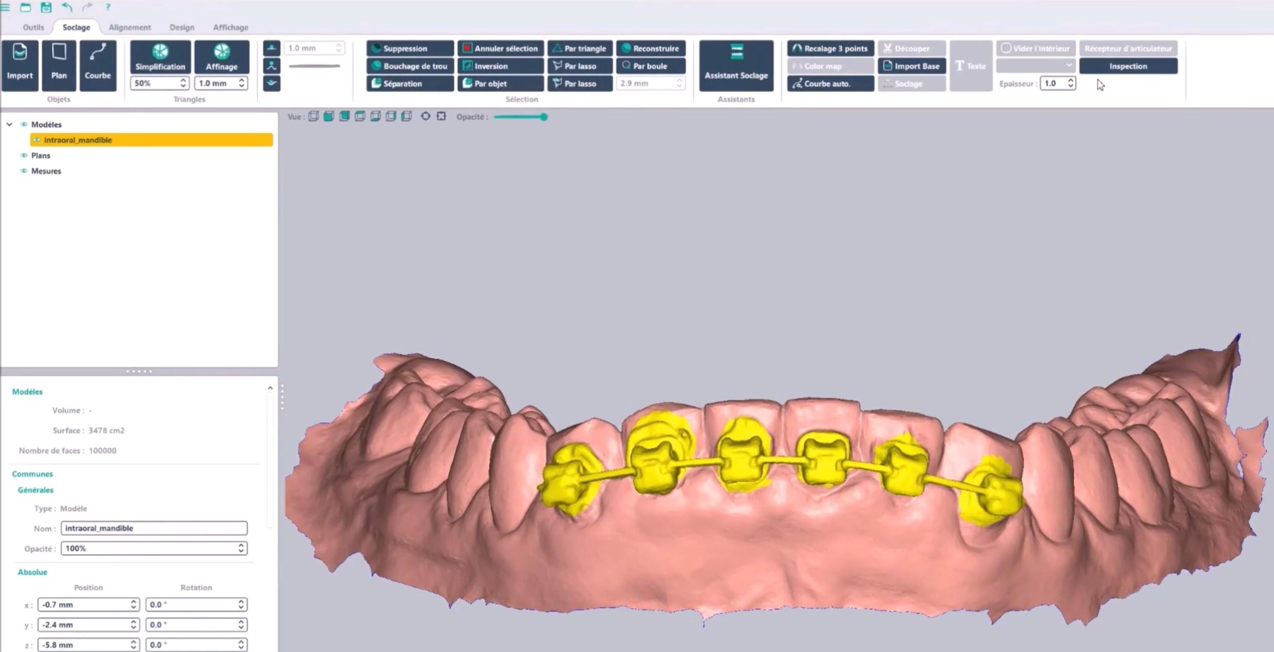 Remove brackets 3D dental model Arch Base DeltaFace