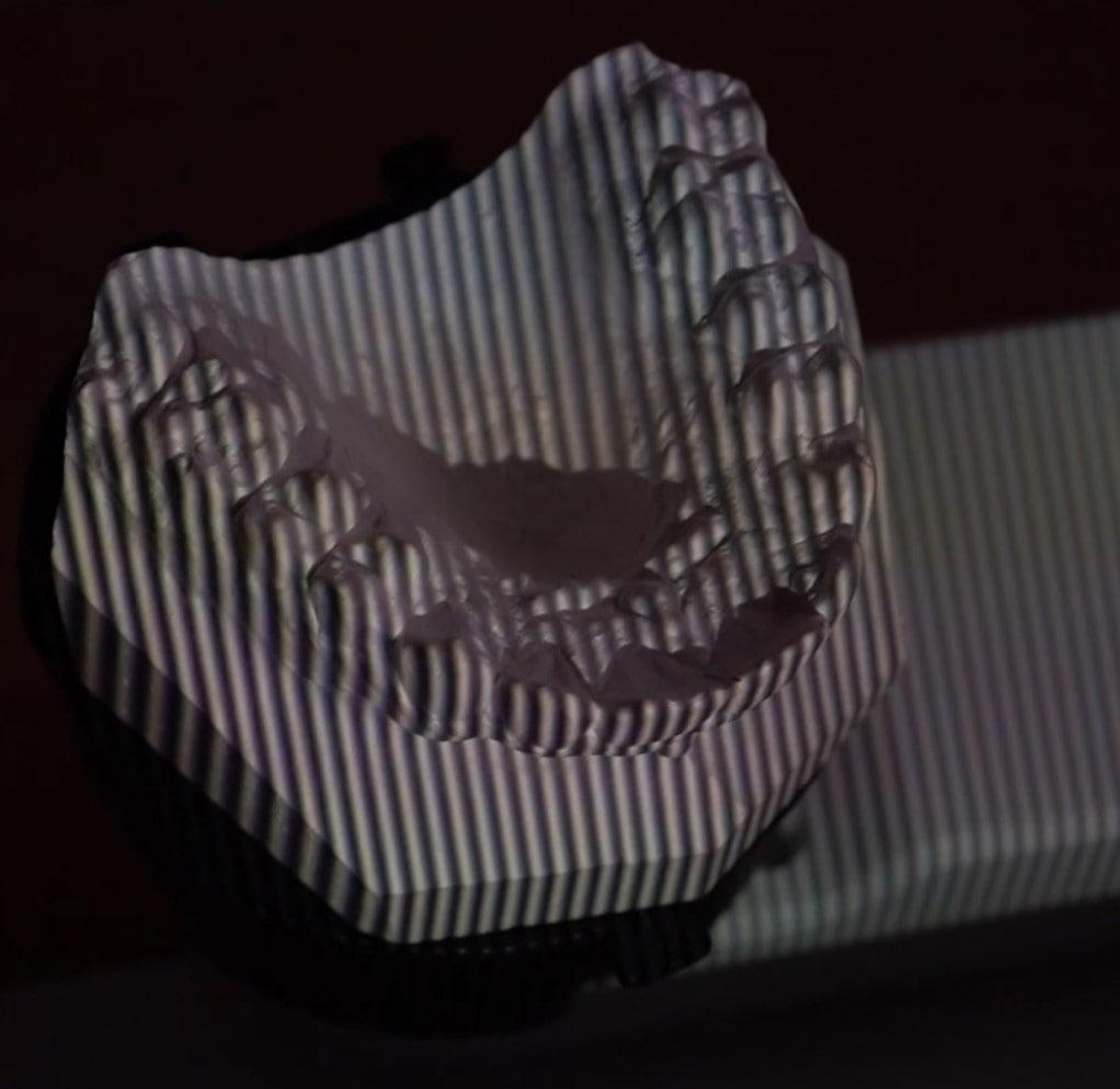 scan modèle dentaire