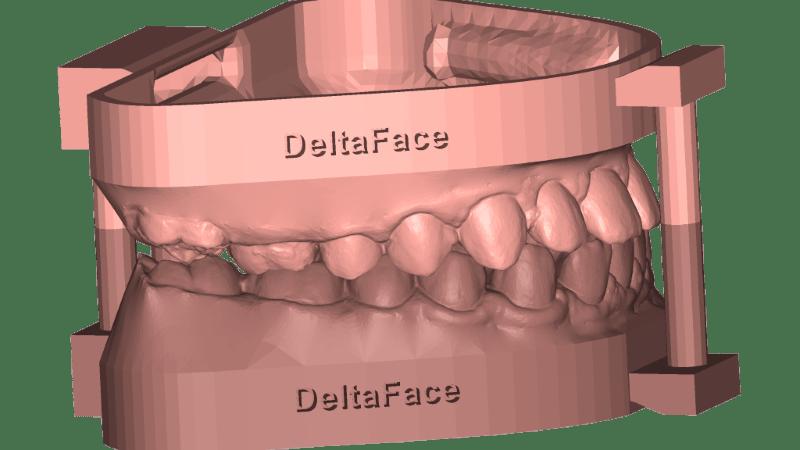 modèles dentaires 3D deltaface arch base