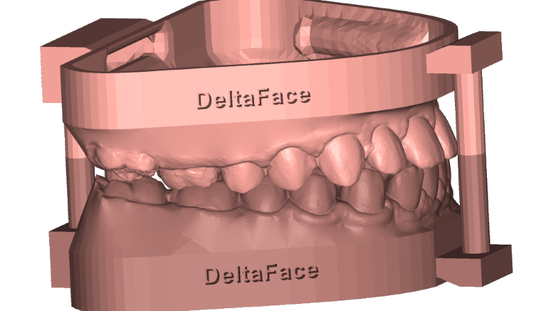 arch base: 3D orthodontic software solution for dental model creation DeltaFace