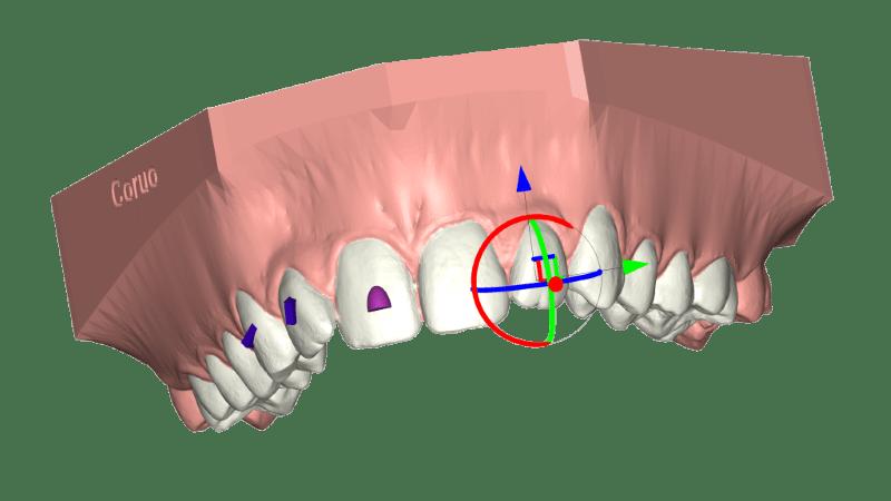 conception de gouttières transparentes deltaface Aligner
