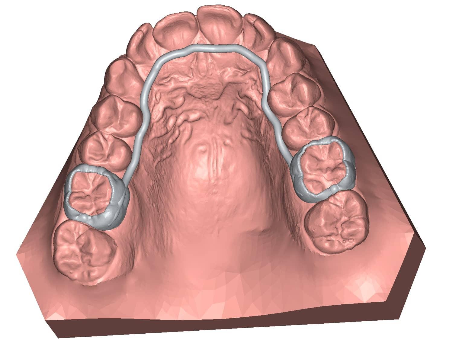 appliance Lingual Arch 3D dental model DeltaFace