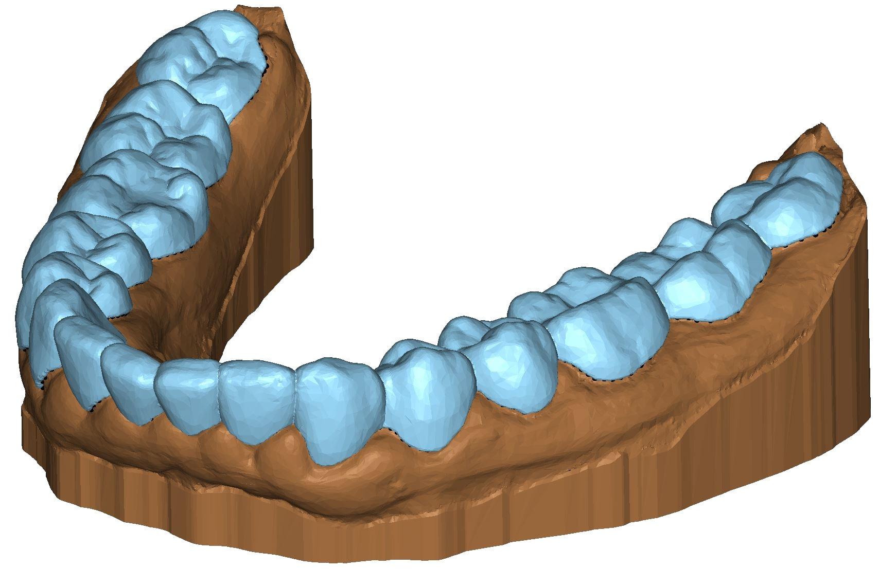 Splint 3D dental model Appliance DeltaFace
