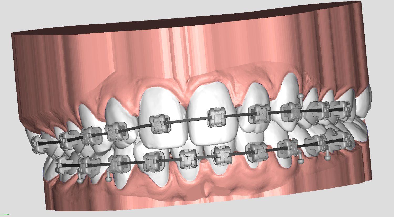 customised brackets indirect bonding deltaface