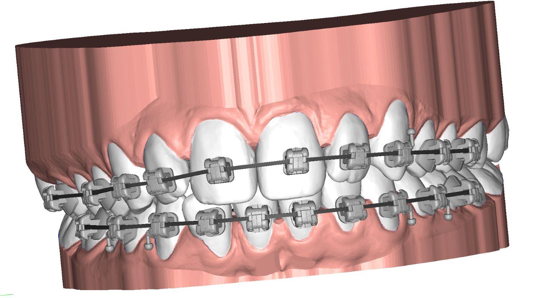 UBrackets Customised brackets and indirect bonding 3D dental model DeltaFace
