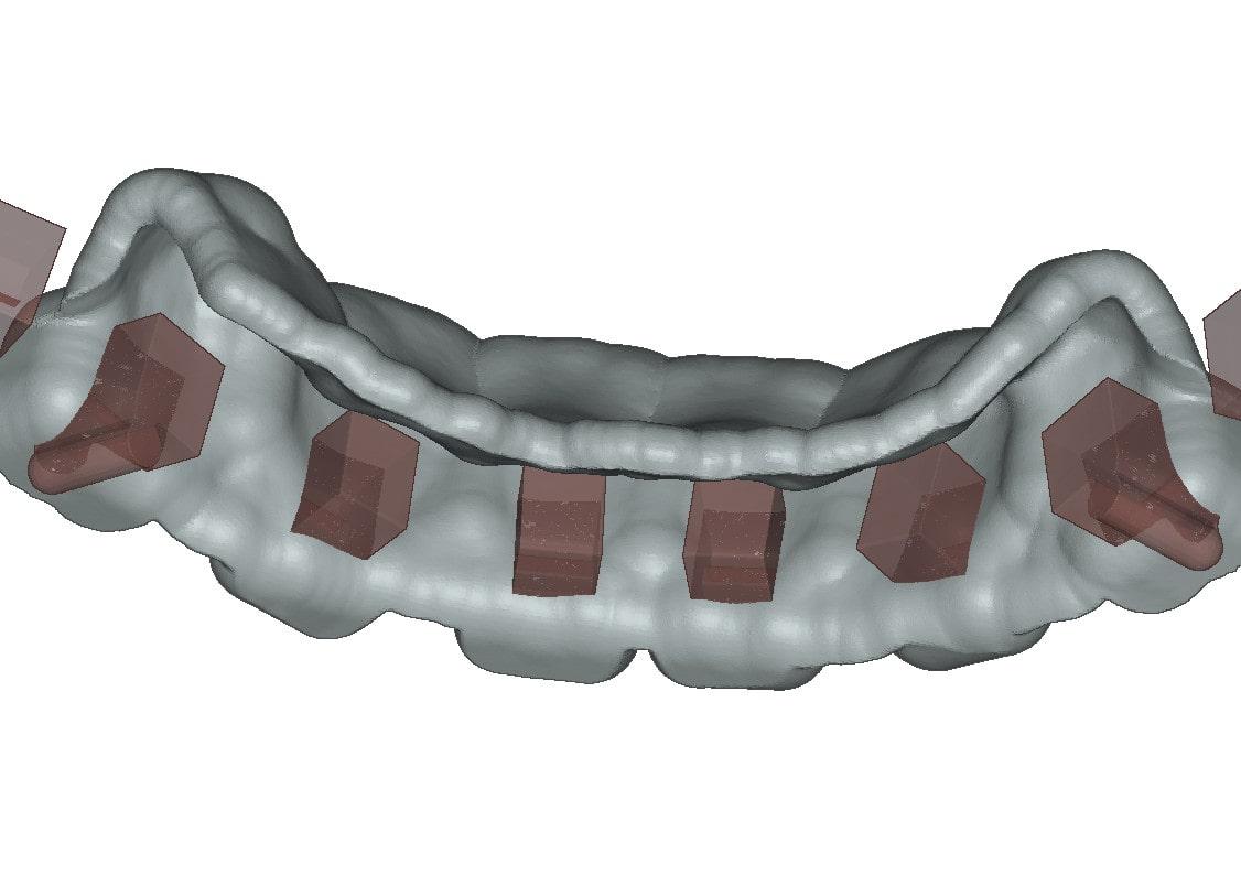 3D dental brackets with undercuts